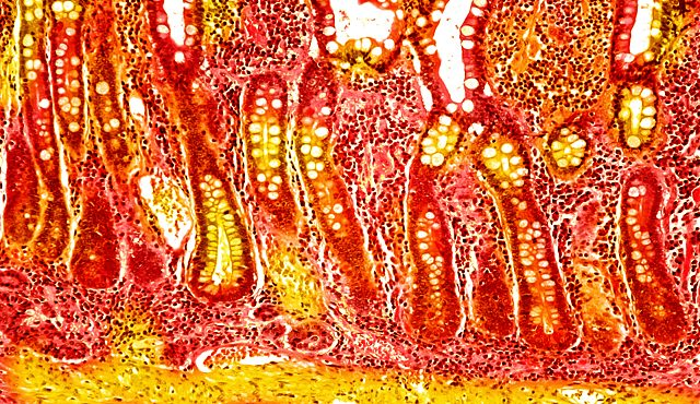 © Nephron / commons.wikimedia.org/wiki/File:Small_intestine_low_mag.jpg (altered)